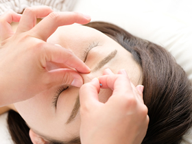 鍼灸による頭痛治療